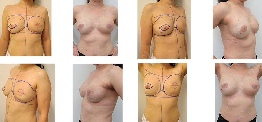 BRCA pozitív beteg, bal oldali korábbi centrális tumoreltávolítás után. Mindkét oldali bőrtakarékos komplettáló profilaktikus mastectomia és azonnali szilikon implantátummal és az alsó polus Ultrapro hálóval történő megerősítésével végzett emlőhelyreállítás. Kétoldali emlőbimbó képzés és tetoválás utáni állapot.