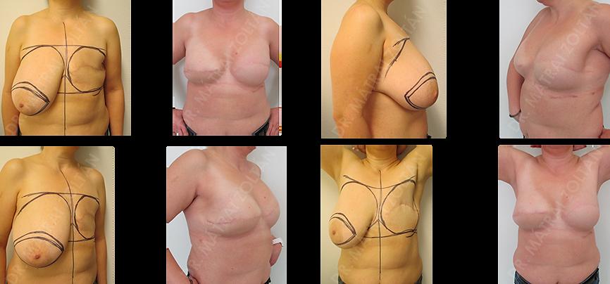 BRCA pozitív beteg. Bal oldalon mastectomia utáni állapot. Bal oldalon hasi advancement lebeny, jobb oldalon bőrtakarékos mastectomia és azonnali szilikon implantátum és Ultrapro hálóval történő emlőhelyreállítás.
