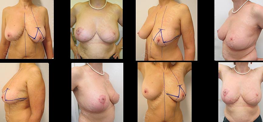 A bal emlő rosszindulatú daganata miatti Wise-szerinti onkoplasztikus emlőmegtartó műtét, majd az utókezeléseket követően szimmetrizációs jobb oldali méretcsökkentő emlőplasztika.