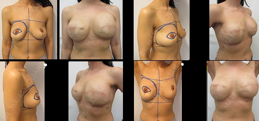 A 41 éves nőbetegnél korábbi esztétikai emlőfelvarrás után emlőrák alakult ki a jobb emlőben. Neoadjuváns kemoterápiát követően jobb oldali bőrtakarékos masztektómiát végeztünk halasztott-azonnali emlőhelyreállítással. A páciensnél BRCA 1 mutáció igazolódott. Az adjuváns sugárterápiát követően jobb oldali expander-szilikon implantátum cserét és autológ zsírtöltést, valamint bal oldali profilaktikus bőrtakarékos masztektómiát és expanderrel történő rekonstrukciót, majd expander-implantátum cserét végeztünk. Szükséges még kétoldali emlőbimbó képzés és tetoválás.