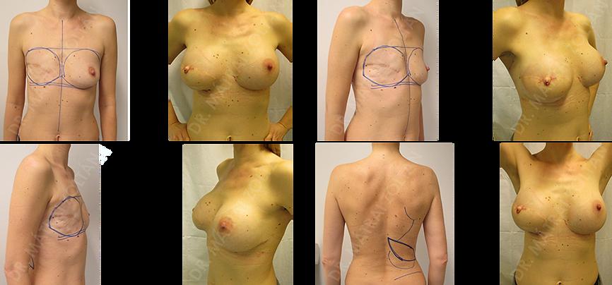 A jobb emlő rosszindulatú daganata miatti teljes eltávolítás utáni állapot. A jobb oldalra széles hátizomlebeny átforgatás, majd mindkét oldalra szilikon implantátum behelyezés, jobb oldalon emlőbimbó képzés. A jobb oldalon bimbóudvar tetoválás az utolsó rekonstrukciós lépés.