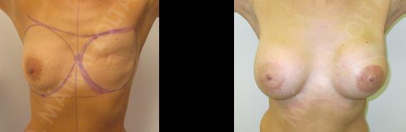 Bal oldali emlőbimbó képzés és tetoválás.