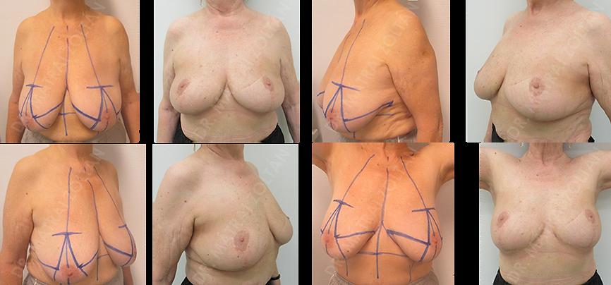 A jobb oldali emlő többgócú rosszindulatú daganata miatt végzett Wise-szerinti onkoplasztikus emlőmegtartó műtét és suagárterápia, valamint bal oldali szimmetrizációs célú térfogatcsökkentő emlőfelvarrás.