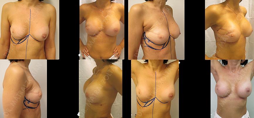 Az előzményben mindkét oldali emlők szilikon implantátummal történő térfogatnövelése szerepel. Mindkét oldalon kis térfogatú mirigyállomány. A jobb oldali emlőben a külső felső negyedben rosszindulatú daganat emlőmegtartó műtét, majd radioterápia és az emlőt deformáló és torzító húzóheg. A jobb oldalra a heges terület pótlására intercostalis arteria perforator lebeny kialakítás, majd  ennek elégtelensége miatt széles hátizomlebenyből ún. minilebeny kialakítása történt, majd mindkét oldali szilikon implantátum beültetéssel az emlők szimmetrizációja.