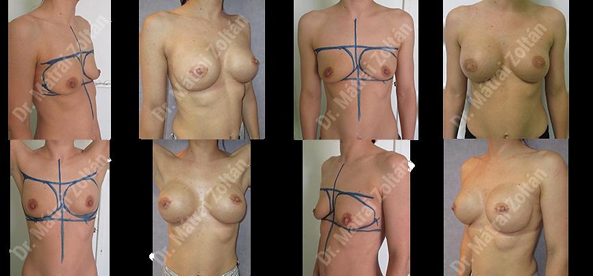 BRCA miatti kétoldali profilktikus masztektómia és szilikon implantátummal történő rekonstrukció - 003 BRCA profilaxis