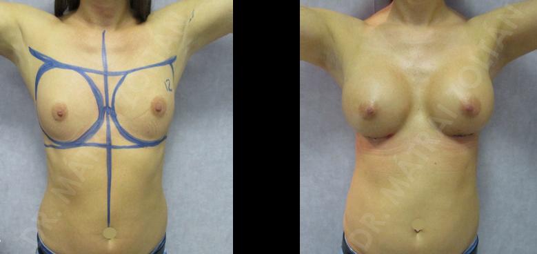 A műtét után