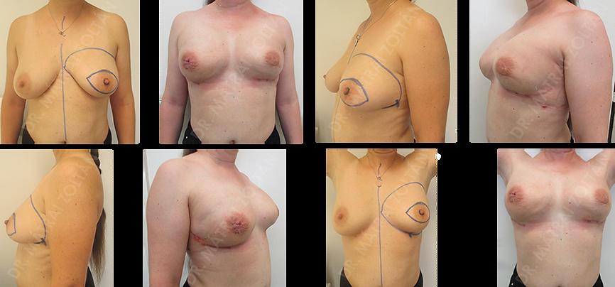 A 41 éves BRCA pozitív nőbetegnél mindkét oldali bimbóudvar megtartó masztektómiát végeztünk hónalji őrszemnyirokcsomó biopsziával és expanderrel történő emlőhelyreállítással, majd minkét oldali expandert szilikon implantátumra cseréltük. A páciensnél mindkét oldali emlőbimbó rekonstrukciót tervezünk.