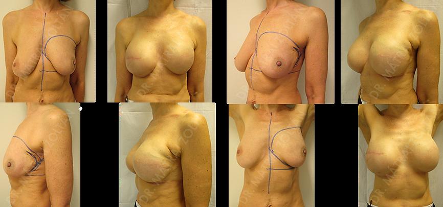 Korábbi bal emlő külső-felső negyed emlőmegtartó műtéte, pozitív sebészi széllel. Komplettáló kétoldali bőrtakarékos mastectomia azonnali expanderrel történő helyreállítással, majd mindkét oldali szilikon implantátum beültetés. Emlőbimbó képzés és bimbóudvar tetoválás előtti állapot.