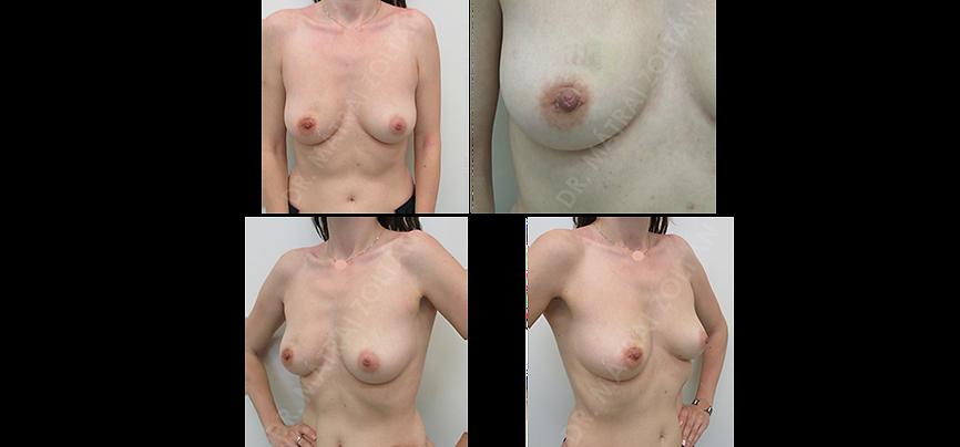 Jobb emlő belső felső negyed 30 mm-es fibroadenoma eltávolítása a bimbó körül ejtett omega metszésből – műtéti beavatkozás utáni állapot. A bőrmetszés hege és a jobb emlőn deformitás nem látszik. Az elváltozás helyén felszívódóban lévő kis bevérzés.