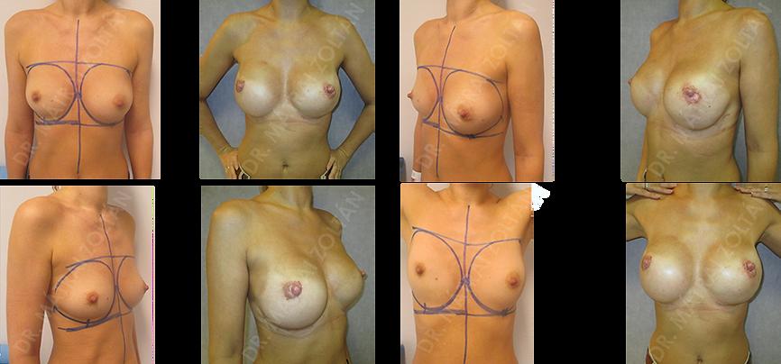A 36 éves nőbetegnél mindkét oldali emlők rosszindulatú daganata miatt történt kétoldali bimbóudvar megtartó mastectomia és azonnali-halasztott emlőhelyreállítás expanderrel, majd szilikon implantátum beültetéssel. A páciensnél mindkét oldali emlőbimbó helyreállítást végeztük, a jobb oldalon a bimbó megkezdett medializálásával.
