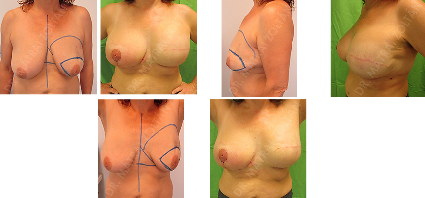 A 43 éves nőbetegnél a bal emlő külső felső negyedéből más intézetben diagnosztikus kimetszés rosszindulatú daganatot igazolt. Bal oldali bőrtakaréKos masztecktómiát végeztünk halasztott-azonnali expanderrel történő rekonstrukcióval. Második lépésben bal oldali expander-szilikon implantátum cserét és jobb oldali emlőfelvarrással történő szimmetrizációt folytattunk. Szükséges még bal oldali emlőbimbó képzés és tetoválás.