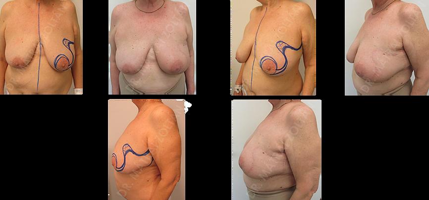 A 70 éves nőbetegnél a bal oldali nagy térfogatú ptotikus emlőn a külső-felső negyedben lévő tumor miatt történt Regnault B onkoplasztikus technikával emlőmegtartó műtét, majd sugárterápia. Letapadás, behúzó hegesedés nincs, a hosszú műtéti heg a sugárterápia után diszkrét.