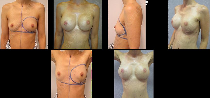 A 39 éves vékony testalkatú magas rizikójú nőbetegnél bal oldali emlőrák miatt bimbóudvar megtartó mastectomia és halasztott-azonnali emlőhelyreállítás történt. Az utókezeléseket követően kérésére rizikócsökkentő jobb oldali bimbóudvar megtartó mastectomia és a jobb oldalon azonnali szilikon implantátummal és Ultrapro hálóval történő emlőhelyreállítás, míg a bal oldalon expander-szilikon implantátum csere történt.