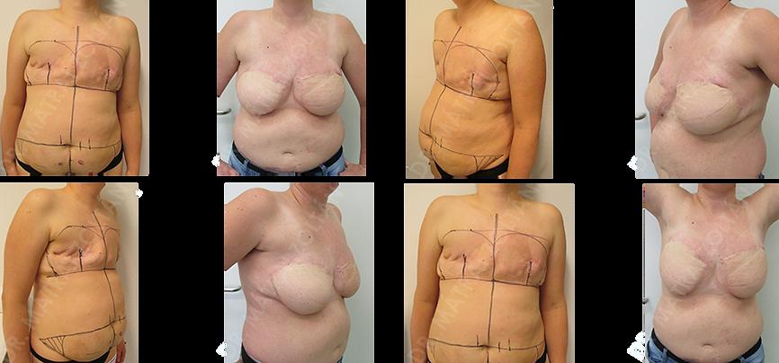 Korábbi mindkét oldali emlőfelvarrást követően kétoldali masztektómia rosszindulatú daganat miatt. Kétoldali alhasi bőr-zsírlebennyel történő emlőhelyreállítás utáni állapot. Szükséges még kétoldali emlőbimbó képzés és tetoválás.