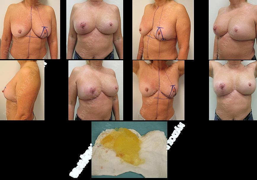 A 62 éves nőbetegnél a korábban gyenge minőségű szilikon implantátummal augmentált emlőben bal oldalon rosszindulatú emlőrák miatt onkoplasztikus Wise-szerinti tumoreltávolítást végeztünk. A kiegészítő kezeléseket követően ismertté vált a bal oldali implantátum intrakapszularis ruptúrája. Mindkét oldali szilikon implantátum cserét, kapszuloplasztikát és jobb oldali emlőfelvarrást végeztünk.