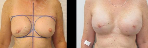 Előzményben jobb oldali emlőmegtartó műtét és sugárterápia. BRCA pozitivitás. Mindkét oldali komplettáló bimbóudvar takarékos teljes mirigyeltávolítás (mastectomia) és azonnali szilikon implantátummal és Ultrapro hálóval történő emlőhelyreállítás.