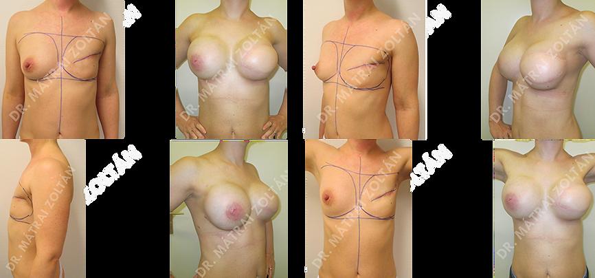 A jobb oldali emlő rosszindulatú daganat miatti teljes mirigyeltávolítása miatti széles hátizomlebeny áthelyezés és mindkét oldali emlők szilikon implantátummal történő szimmetrizációja. Bal oldalon emlőbimbó képzés utáni állapot tetoválás előtt.