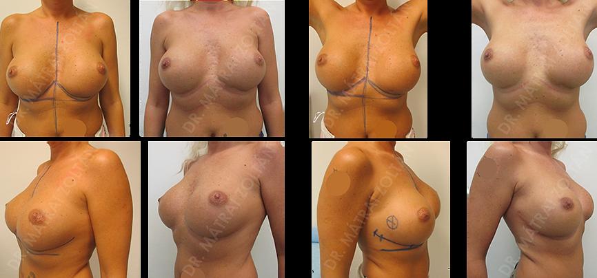 A 42 éves nőbetegnél korábban más intézetben mindkét oldali emlők szilikon implantátummal történő augmentációja történt. Az implantátumok szuboptimális pozícióban, megsüllyedve helyezkedtek el. Jelenleg a jobb emlőben a külső negyedhatáron alakult ki roszsindulatú daganat. A tumort az oldalsó áthajlási redőben vezetett metszésből ún. retroglanduláris onkoplasztikus technikával távolítottuk el, a mirigypillérek dual plane mobilizálásával és belső varrattal remodellálva az emlőt.