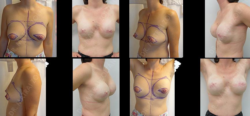 BRCA pozitív betegnél kétoldali bőrtakarékos masztektómia azonnali expanderrel történő emlőhelyreállítással, majd expander-szilikon implantátum csere és emlőbimbó kézpés, tetoválás előtt.