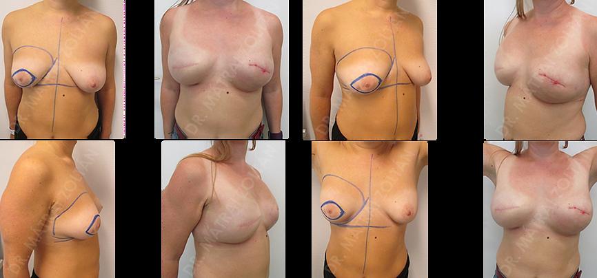 A 39 éves BRCA pozitív fiatal nőbetegnél a jobb emlőben lévő rosszindulatú daganat miatt történt bőrtakarékos masztektómia és halasztott-azonnali emlőhelyreállítás, szövettágító expanderrel, majd szilikon implantátummal. A kezeléseket követően kérésére bal oldali komplettáló kockázatcsökkentő bőrtakarékos masztektómia és azonnali szilikon implantátummal és direkt az implantátumra helyezett Ultrapro hálóval történő azonnali emlőhelyreállítással. A páciens kétoldali emlőbimbó képzés és tetoválás előtt áll.