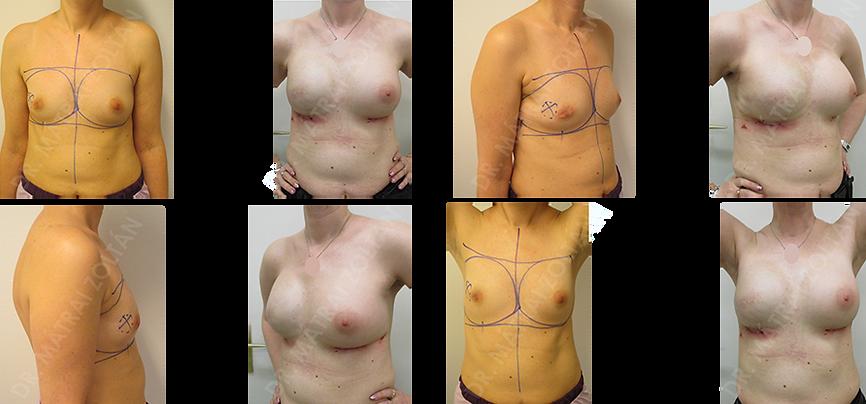 A jobb emlő rosszindulatú daganata miatti bőrtakarékos mastectomia és expanderrel történő azonnali helyreállítás, majd sugár- és kemoterápia és jobb oldali expander-szilikon implantátum csere, valamint bal oldali szilikon implantátummal történő szimmetrizáció. Jobb oldalon még emlőbimbó képzés és bimbóudvar tetoválás szükséges.