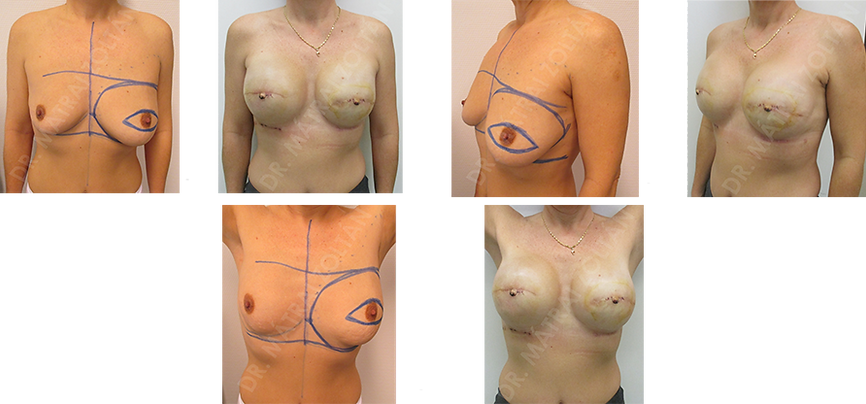 A 40 éves nőbetegnél bal oldali emlőrák miatt végeztünk bőrtakarékos masztektómiát halasztott-azonnali expander behelyezéssel. Genetikai vizsgálat a BRCA 2 gén mutációját igazolta, emiatt jobb oldali profilaktikus bőrtakarékos masztektómia és expanderrel történő rekonstrukció történt, majd mindkét oldali expander-szilikon implantátum csere és emlőbimbó képzés. A páciensnél mindkét oldali bimbó-bimbóudvar tetoválása szükséges.