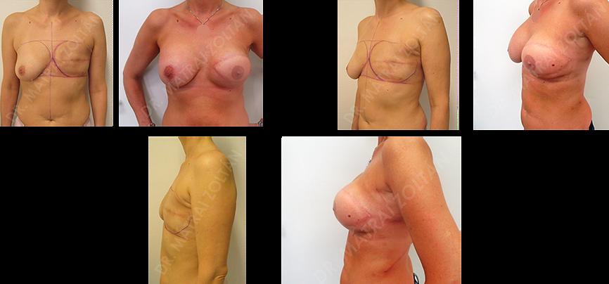 A bal emlő rosszindulatú daganata miatti teljes eltávolítása után széles hátizomlebennyel történő lágyrészrekonstrukció történt, majd mindkét oldalra szilikon implantátum beülteés. A bal oldalon emlőbimbó képzés és tetoválás utáni állapot látható.