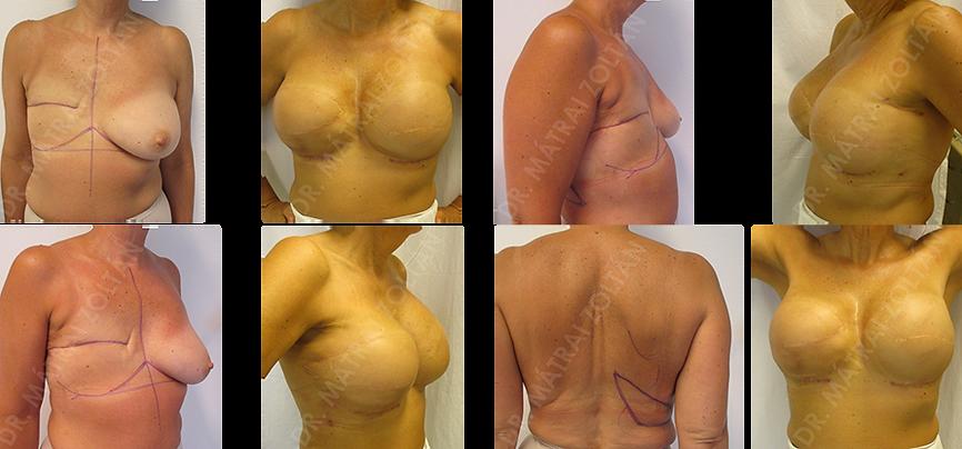 Az 55 éves BRCA pozitív nőbetegnél a jobb oldalon mastectomia történt. Jobb oldali széles hátizomelebeny átforgatás, majd szilikon implantátum beültetés, és bal oldali bőrtakarékos mastectomia, valamint halasztott-azonnali expander-szilikon implantátummal történő emlőhelyreállítás, többes műtétek utáni végállapot és szimmetria. A páciens kétoldali emlőbimbó helyreállítás és tetoválás előtt áll.