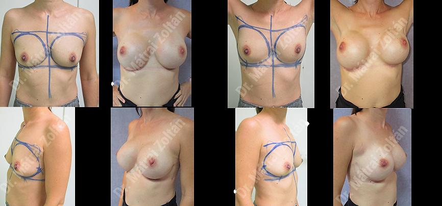 BRCA miatti kétoldali profilktikus masztektómia és szilikon implantátummal történő rekonstrukció - 002 BRCA profilaxis