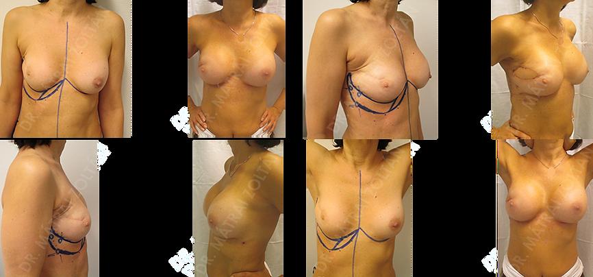 A jobb emlő külső felső negyed tumor eltávolítás és radioterápia utáni állapot. A hegek az emlőbimbót a hónalj felé húzzák el. A jobb emlő külső-felső negyed hegkimetszés és lokális lebennyel történő lágyrészpótlás, valamint mindkét oldali emlő szilikon implantátumokkal történő szimmetrizációja.