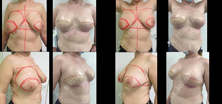 Kétoldali bőrtakarékos masztektómia, BRCA profilaxis