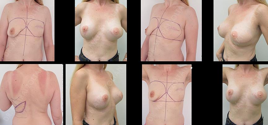 A 34 éves nőbetegnél bal oldali mastectomia történt. A baloldali emlőt széles hátizomlebeny átforgatással és szilikon implantátum beültetéssel rekonstruáltuk, míg a jobb emlőt emlőfelvarrással és szilikon implantátum beültetéssel szimmetrizáltuk. A bal oldalon emlőbimbó képzés és tetoválás. Hosszútávú, 26 hónapos kozmetikai eredmény.