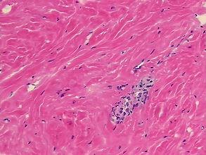 fibrózis és ciszták