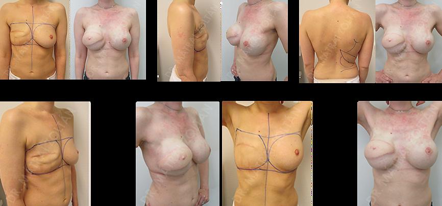 A 40 éves BRCA pozitív nőbetegnél jobb oldali masztektómia történt. A jobb oldalon széles hátizomlebeny transzpozíciót végeztünk szilikon implantátum beültetéssel, a bal oldalon pedig bimbóudvar megtartó masztektómiát és szilikon implantátummal valamint Ultrapro hálóval történő azonnali emlőhelyreállítást. Mindkét oldalon emlőbimbó rekonstrukció utáni állapot. A páciens a jobb bimbóudvar tetoválás előtt áll.