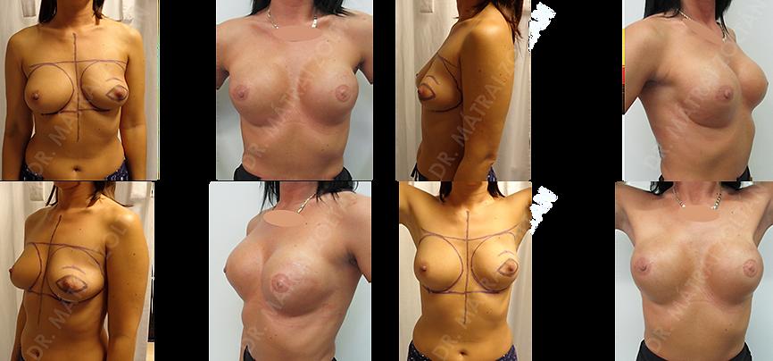 BRCA pozitív nőbeteg. Bal oldalon inkoplett emlőmegtartó műtét majd neoadjuváns kemoterápia, majd mindkét oldali bőrtakarékos mastectomia azonnali epxander implantátummal történő emlőhelyreállítással, majd mindkét oldali szilikon implantátum beültetés, emlőbimbó képzés és tetoválás utáni állapot.