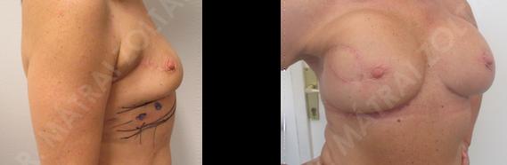 A jobb emlő külső felső negyed rosszindulatú daganata miatti korábbi emlőmegtartó műtét és sugárterápia utáni asszimmetria. A külső felső negyedben húzóheg. A jobb emlő külső-felső negyed intercostalis arteria perforator lebennyel történő lágyrészpótlása, majd mindkét oldali emlő szilikon implantátumokkal történő szimmetrizációja.