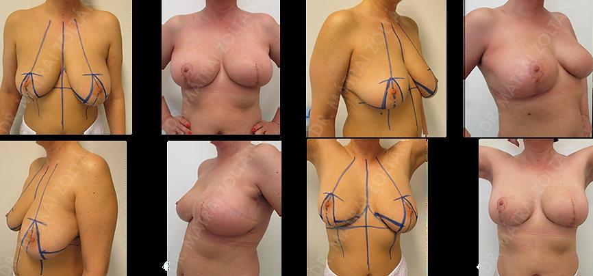 A bal oldali emlőn centrális rosszindulatú daganat primer szisztémás kezelés után, onkoplasztikus centrális negyedeltávolítás és azonnali ellenoldali szimmetrizáció. A bal oldalon emlőbimbó képzés és tetoválás szükséges.