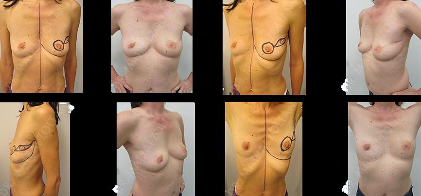 Bal emlő külső felső negyedében felfedezett tumor onkoplasztikus (Regnault B) technikával történő eltávolítása történt. Sugárterápia utáni végállapot a kis térfogatú emlőn.