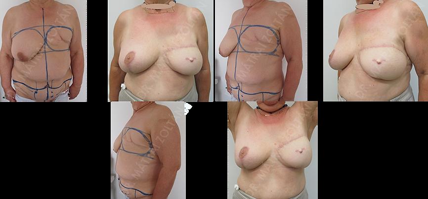A 65 éves nőbetegnél korábban bal oldali masztektómia történt. Lebenykésleltetést követően bal oldali alhasi bőr-zsírlebennyel (TRAM lebeny) történt emlőhelyreállítás, majd jobb oldali szimmetrizációs célú emlőfelvarrás és bal oldali emlőbimbó képzés. A páciens bal oldali bimbóudvar tetoválás előtt áll.
