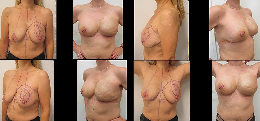Bal oldali emlő kiterjedt rosszindulatú daganat miatti bal oldali bőrtakarékos mastectomia és azonnali expanderrelt örténő helyreállítás, majd bal oldlai expander-szilikon implantátum csere és jobb oldali emlőfelvarrás és szilikon implantátummal történő szimmetrizáció.