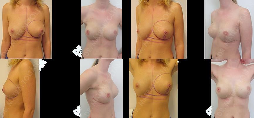 A páciensnél a bal oldali emlőn 6 óra irányában vezetett metszésből más intézetben nem az épben tumoreltávolítást végeztek. A terhességi emlőráknál a bal oldali emlő komplettáló bimbóudvar megtartó teljes mirigyeltávolítására kényszerültünk, azonnali expanderrel történő emlőhelyreállítással. A páciensnél BRCA pozitivitás igazolódott. Miután a páciens egészséges kisgyermeknek adott életet, és az adjuváns szisztémás terápiája elkezdődött, bal oldali expander-szilikon implantátum cserét és jobb oldali bimbóudvar takarékos teljes mirigyeltávolítást (masztektómia) végeztünk a jobb oldalon szilikon implantátum és Ultrapro hálóval történő azonnali rekonstrukcióval.
