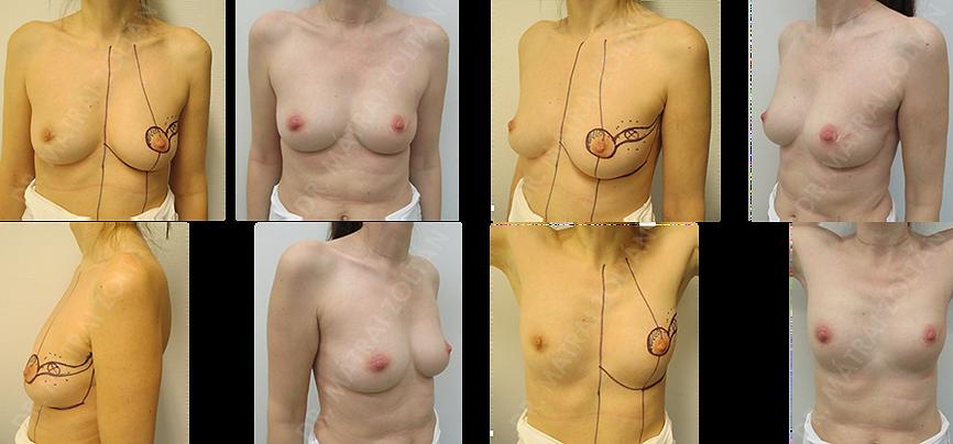 A 43 éves nőbetegnél a bal emlő külső felső negyedében lévő rosszindulatú daganatot operáltuk regnault B onkoplasztikus technikával. A műtét és a sugárterápia után az esztétikai eredménnyel a páciens elégedett.