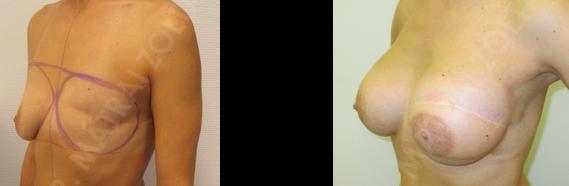 Halasztott rekonstrukció széles hátizomlebeny áthelyezéssel és mindkét oldali szilikon implantátum beültetéssel.