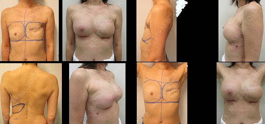 Az 54 éves nőbetegnél az emlő rosszindulatú daganata miatt bal oldali mastectomia történt. A páciens kérésének eleget téve bal oldali széles hátizomlebeny transzpozíciót, majd bal oldali szilikon implantátum beültetést és jobb oldali szilikon implantátummal történő szimmetrizációt végeztünk. Bal oldali emlőbimbó képzés és tetoválás szükséges.