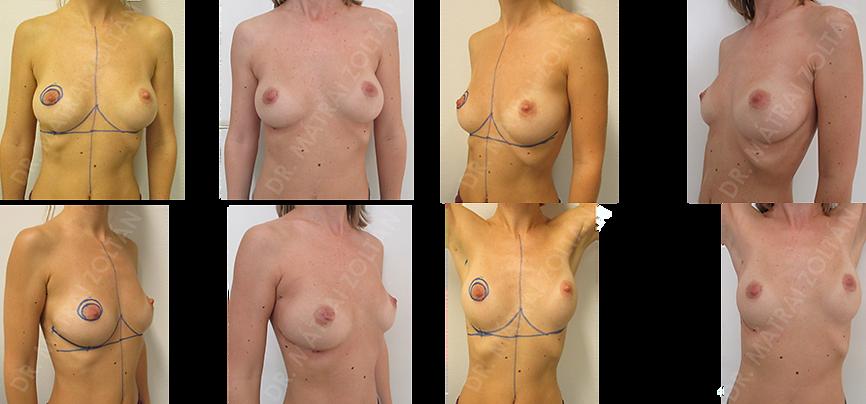 A 38 éves nőbetegnél a jobb emlő külső negyedhatárán alakult ki rosszindulatú emlőrák, amit az oldalsó áthajlásban vezetett metszésből ún. mirigyállomány mögötti onkoplasztikus technikával távolítottunk el. A mirigypillérek mobilizálásával és remodellálásával az emlő bőre alatt állítottuk helyre az emlő formáját.