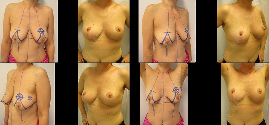A bal emlő külső felső negyed bőrközeli tumor negyedeltávolítáa bőrsziget rotációs módosított Wise-szerinti onkoplasztikus emlőmegtrató műtét és radioterápiát követő állapot.
