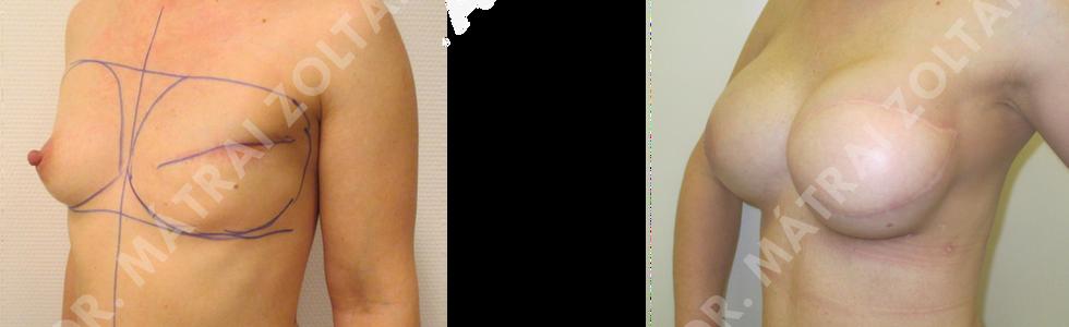 A bal oldali emlő rosszindulatú daganat miatti teljes mirigyeltávolítása miatti széles hátizomlebeny áthelyezés és mindkét oldali emlők szilikon implantátummal történő szimmetrizációja. Bal oldali emlőbimbó képzés és bimbóudvar tetoválás előtt.