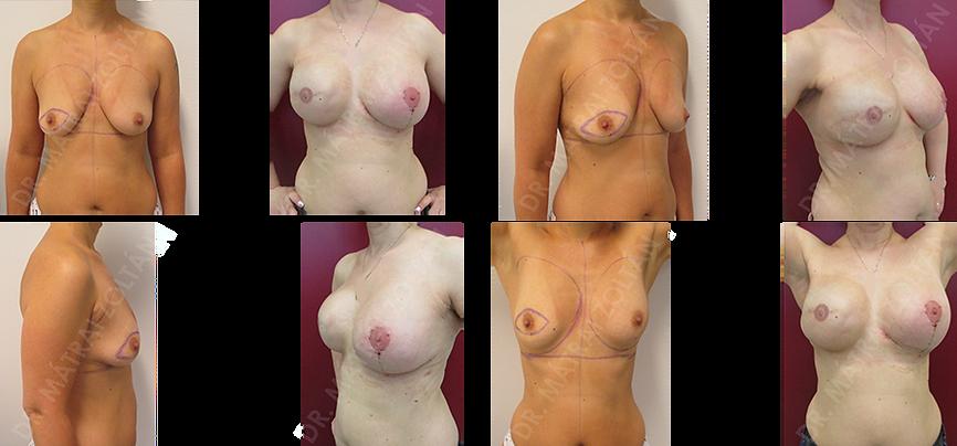 A páciensnél jobb oldali bőrtakarékos mastectomia történt azonnali expanderrel történő emlőhelyreállítással, majd expander-szilikon implantátum csere a jobb oldalon és bal oldali emlőfelvarrás, valamint szilikon implantátummal történő szimmetrizáció. A jobb oldali emlőn emlőbimbó képzés és tetoválás.