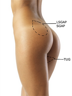 LSGAP_SGAP.png