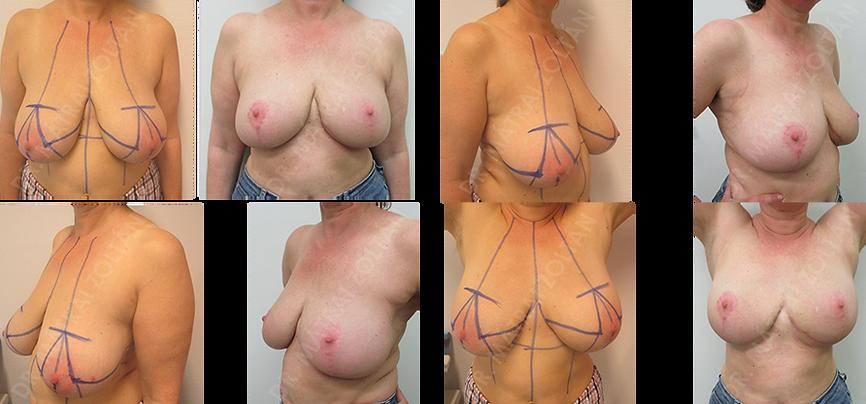 A bal emlő felső negyedhatár rosszindulatú daganata miatti Wise-szerinti onkoplasztikus emlőmegtartó műtét és sugárterápia, valamint jobb oldali azonnali szimmetrizációs méretcsökkentő emlőfelvarrás.